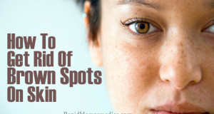 Top 7 Remedies to Get Rid of Brown Spots on Skin