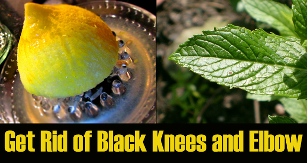How to Get Rid of Black Knees and Elbow