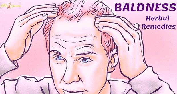 Remedies for Baldness