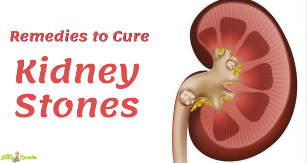 Remedies to Cure Kidney Stones