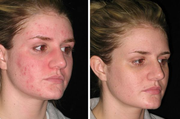10 Most Easy Remedies for Pimples