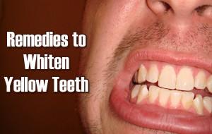 5 Surprising Remedies to Whiten Yellow Teeth