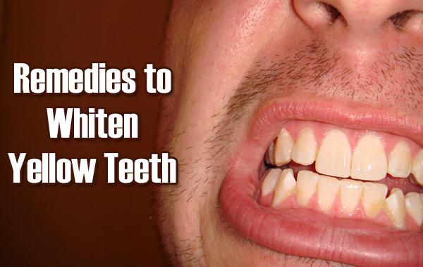 5 remèdes surprenants pour blanchir les dents jaunes