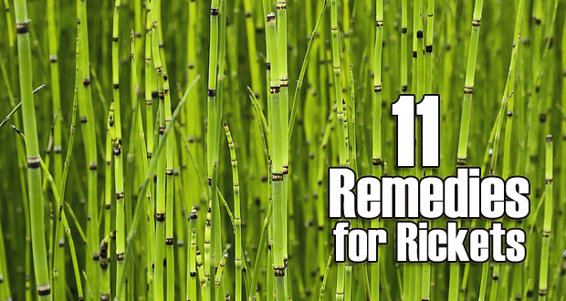 Home Remedies for Rickets