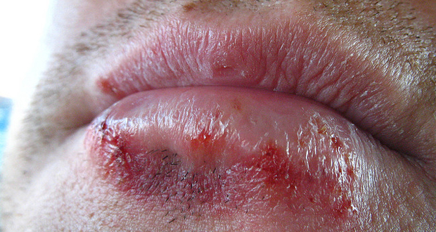 Herbal Remedies for Herpes