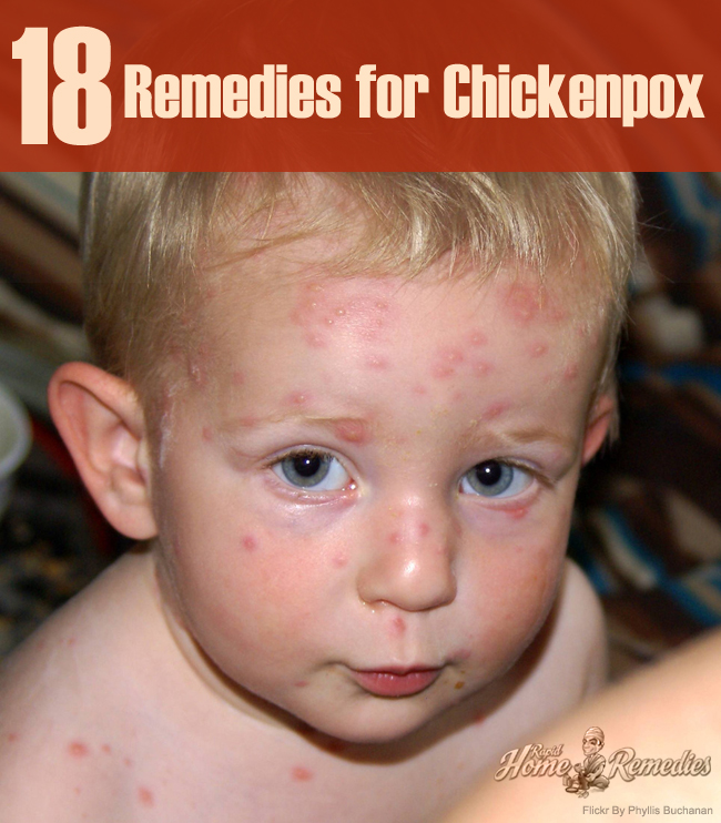 Natural Remedies for Chickenpox