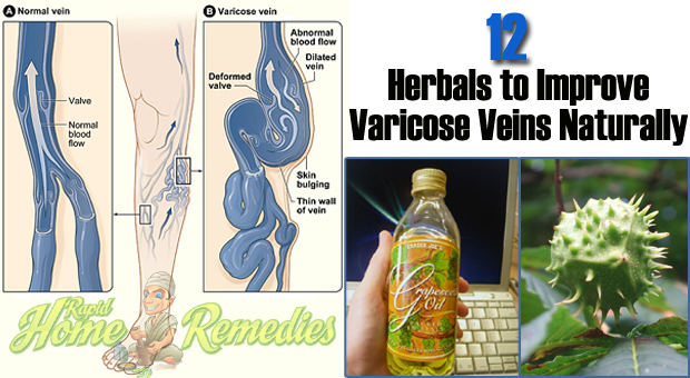 Top 12 Home Herbal Remedies for Varicose Veins