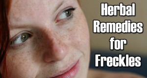14 Excellent Herbal Remedies for Freckles