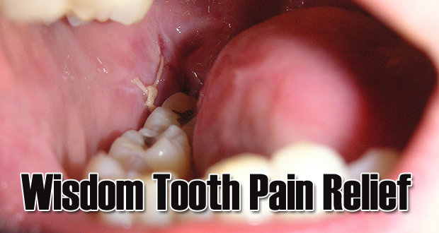15 Home Remedies for Instant Wisdom Tooth Pain Relief