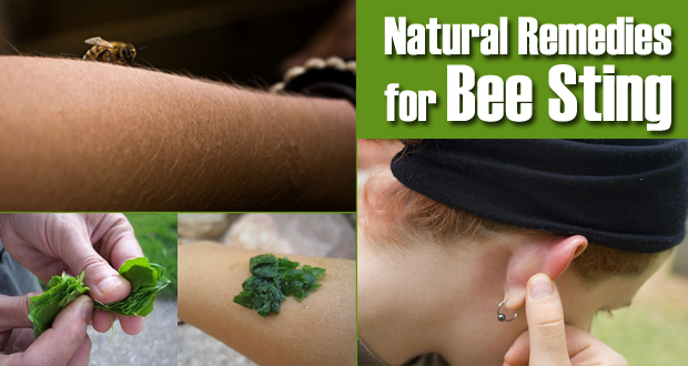 Natural Remedies For Bee Sting Pain