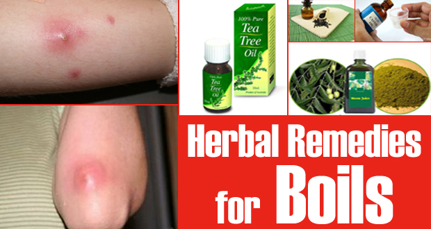 15 Herbal Remedies for Boils