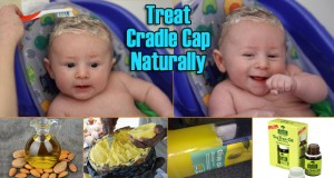 15 Simple Home Remedies for Cradle Cap