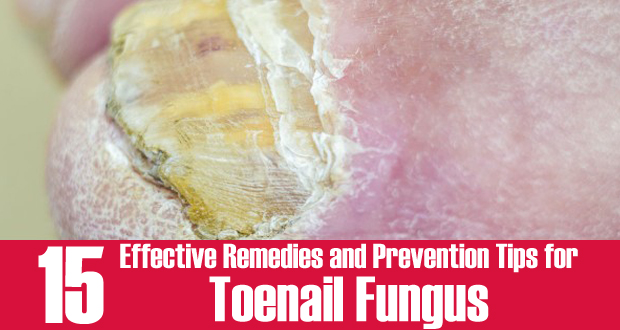 Fungal Infections Toenails Natural Remedies