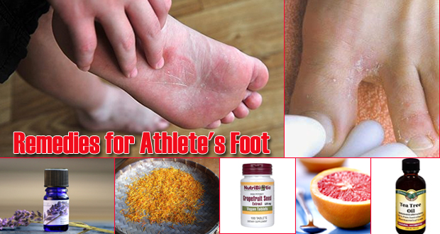 17 Home Remedies for Athlete's Foot