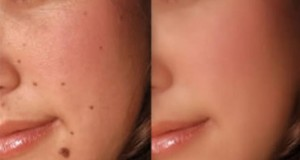 16 Effective Home Remedies for Moles