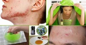 Natural Remedies to Get Rid of Cystic Acne Fast