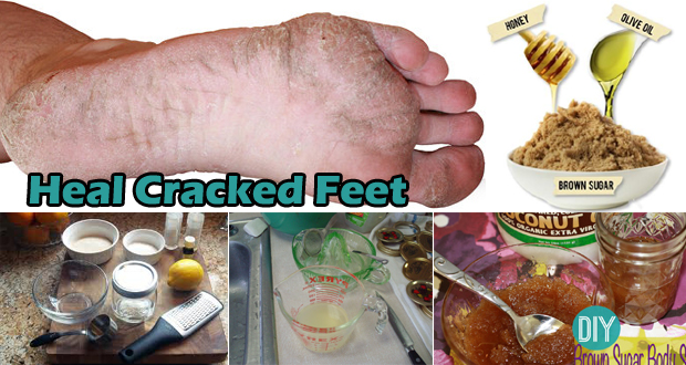 12 Amazing Ways to Heal Cracked Feet