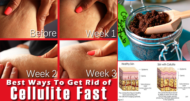 how to get rid of celluote