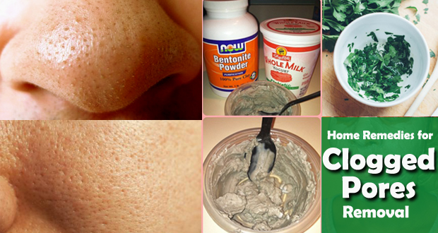 Top 12 Home Remedies for Clogged Pores