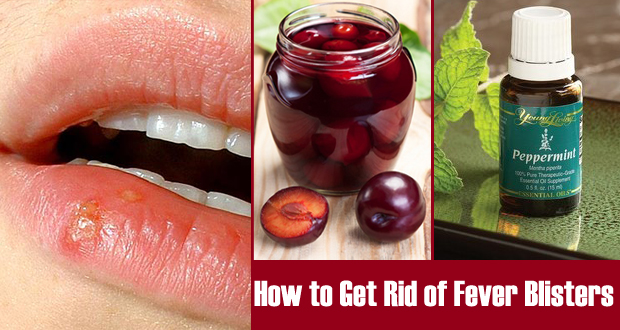 How to Get Rid of Fever Blisters