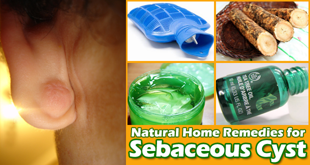 Home Remedies for Sebaceous Cyst