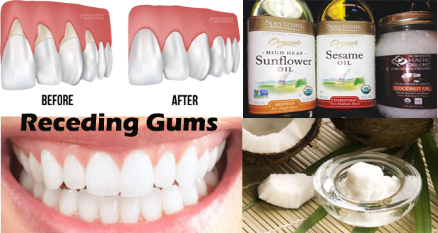 Home Remedies to Grow Back Receding Gums