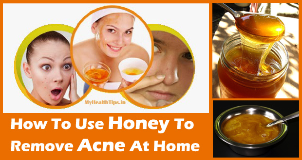 Honey for Acne – Use Honey to Remove Acne and its Scars