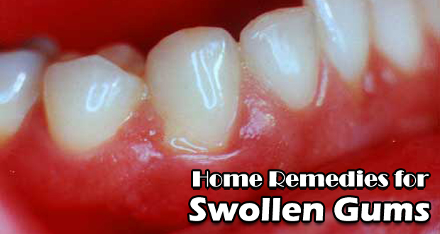 14 Home Remedies for Swollen Gums