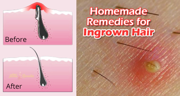 Get Rid of Ingrown Hair