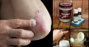 How to Use Coconut Oil for Eczema