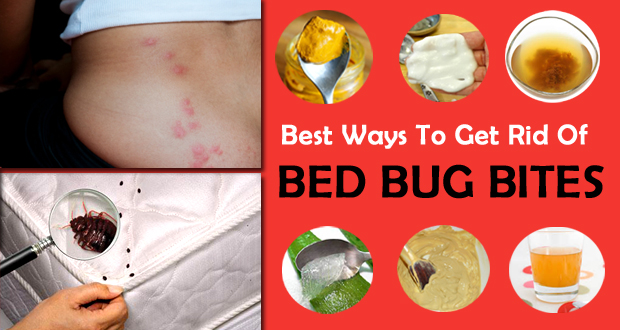How To Get Rid Of Bed Bug Bites Itchiness Fast