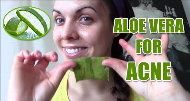 9 Simple Ways to Use Aloe Vera for Acne