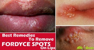 Best Home Remedies for Fordyce Spots