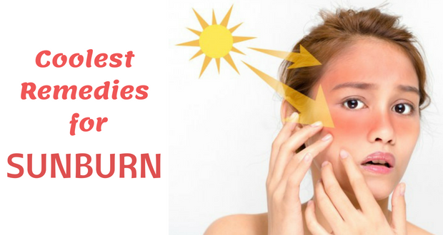 17 Coolest Remedies for Sunburn