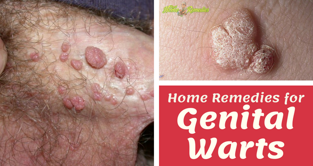 How to Get Rid of Genital Warts: Top 18 Home Remedies